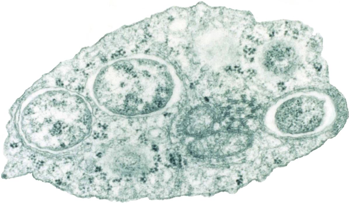 MN90: Brainerd's Mystery Outbreak